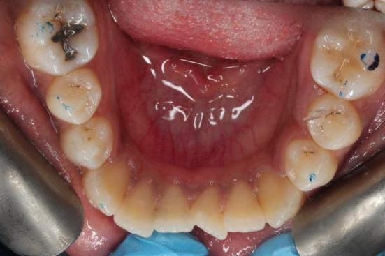 invisalign before L Arch