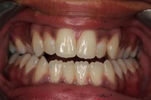 http://www.pearldentalclinic.co.uk/files/invisalin-before.jpg