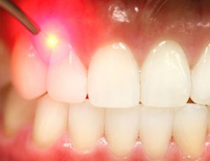 soft tissue dental laser