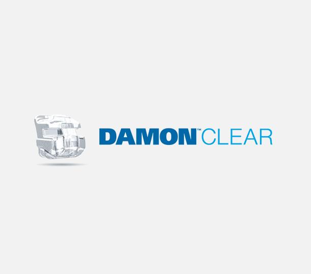 Damon Clear Braces