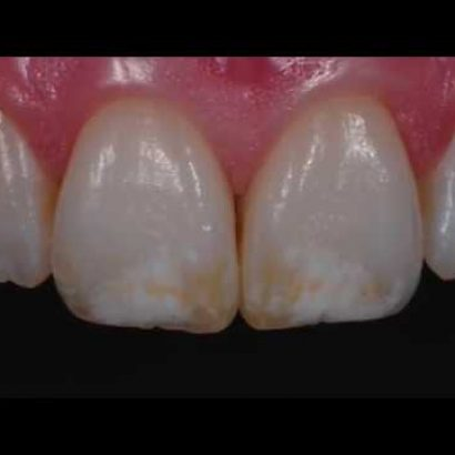 Patchy Teeth Treatments