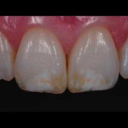 Patchy Teeth Treatments