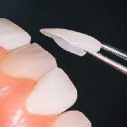 Dentistry Veneers