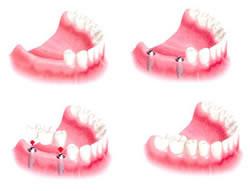 same day teeth