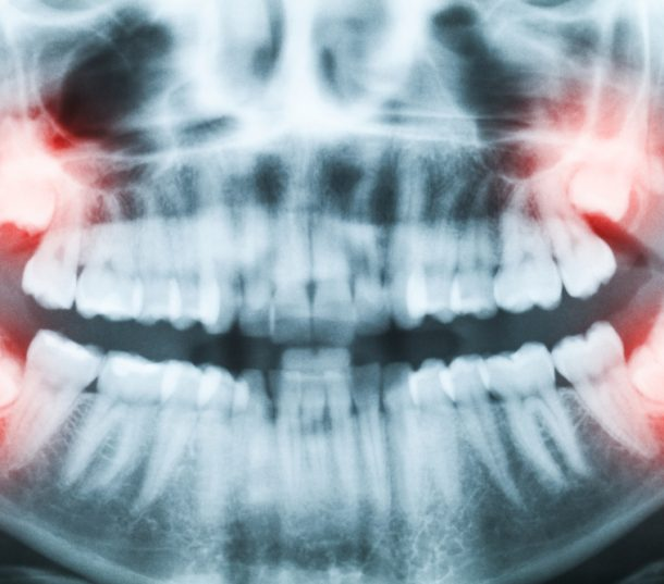 Wisdom Tooth Extraction