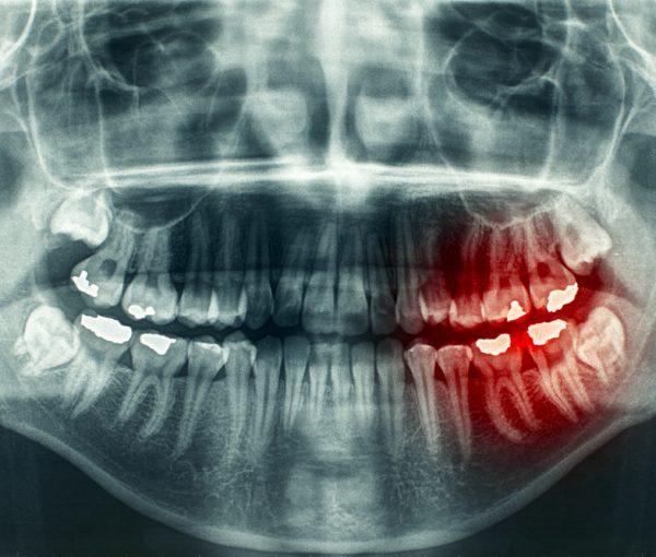 Jaw Injuries
