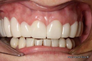 snap on smile Full arches right side teeth after