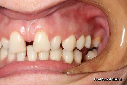 snap on smile Full upper_lower arches left side teeth before