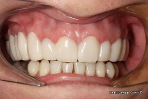 snap on smile Full upper_lower arches right side teeth after