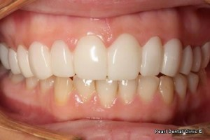 snap on smile Full upper_lower arches teeth after