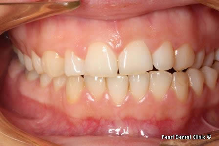snap on smile Full upper_lower arches teeth before