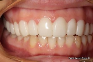 snap on smile Full upper_lower left side arches teeth after