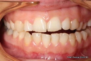 snap on smile Full upper_lower left side arches teeth before