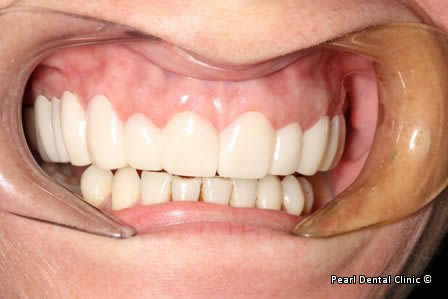 snap on smile Full upper_lower arches right side teeth before