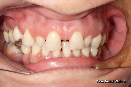 snap on smile Full upperlower arches right_side teeth before