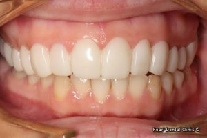 snap on smile Full upperlower arches teeth after