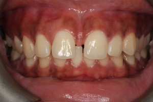 teethgaps