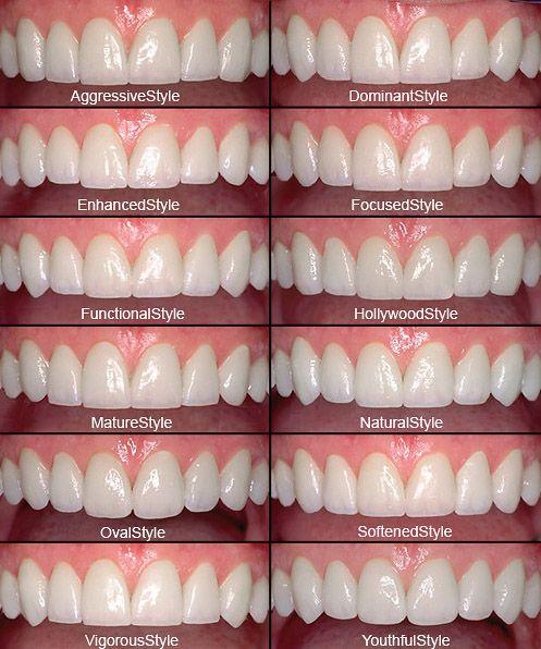 dental veneer design